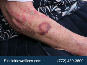 Elderly Abuse Injury Attorney in Port Saint Lucie FL